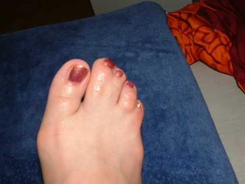 webbed toes - youtube, Skeleton