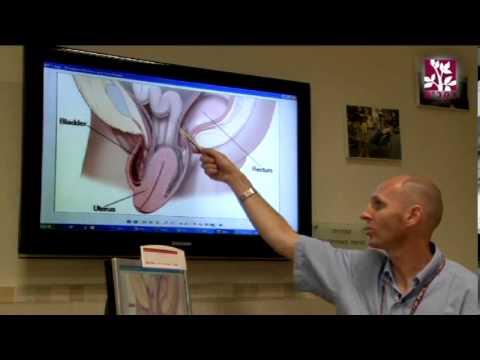 Опущение тазовых органов у женщин