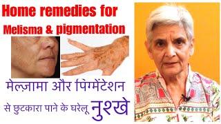 Home remedies for pigmentation/melisma, पिगमेंटेशन /मेलस्मा  से बचने के घेरलू नुस्खे,by pigmentation