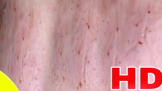 Cystic Acne ، Pimples And Blackheads Extraction Treatment On Face!! |(PART 15)