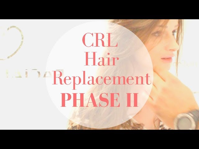 Hair Replacement System - Part II: Fitting Session of