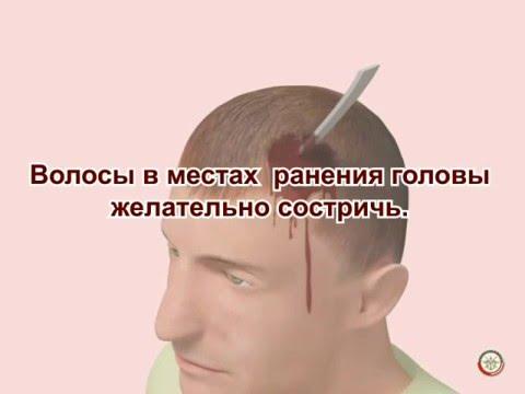 Как обработать рану на голове