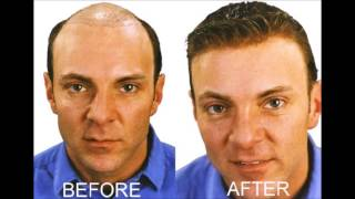 How To Stop Baldness And Regrow Hair Naturally - Yoga For Hair Fall