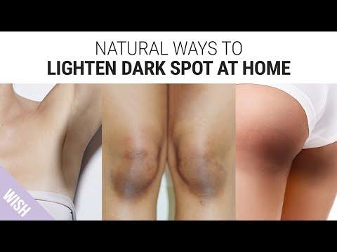 how-to-lighten-dark-underarms,-knees-&-elbows-|-skin-brightening-tips-for-dark-spot