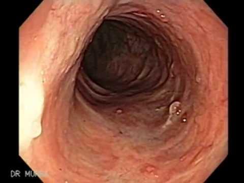 Colonoscopy of Ulcerative Colitis
