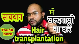 What is the Actual age of hair transplantation #tannudada