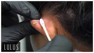 Cartilage Piercing Removal!! (Pus Coming Out)