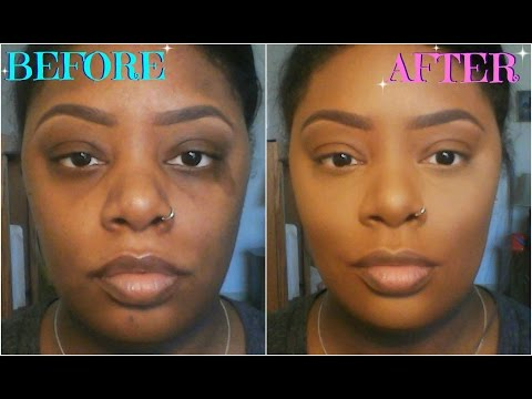 How To Color Correct/Conceal Dark Circles, Acne Scars, & Birthmarks (For Dark Skin)