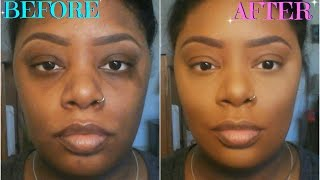 How To: Color Correct/Conceal Dark Circles, Acne Scars, & Birthmarks (For Dark Skin)