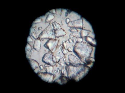 Sugar crystals under my homemade microscope
