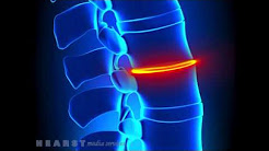 The Institute Of Pain Management - Back Pain - Midland TX 79701