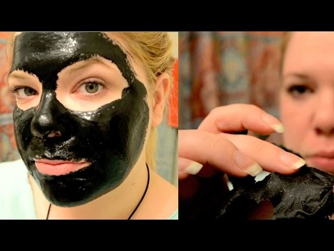 how to clear up blackheads fast