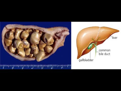 Signs That You Have Gallbladder Stones