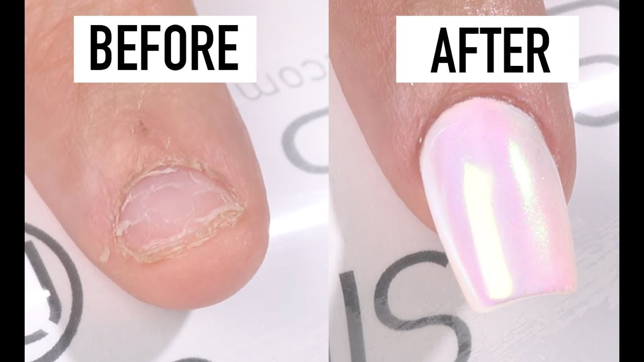 How To Fix Short Bitten Nails with Gel - Nails 21 - YouTube