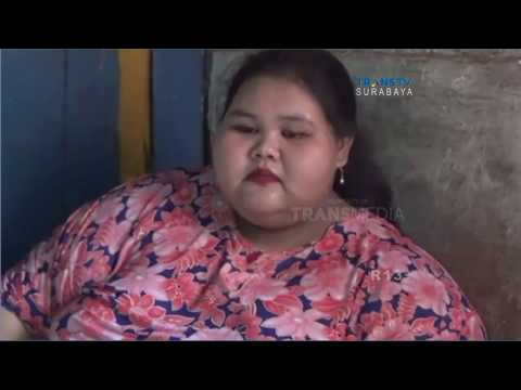 Gadis Obesitas Berbobot asal Lamongan Bersedia Dirujuk ke Rumah Sakit