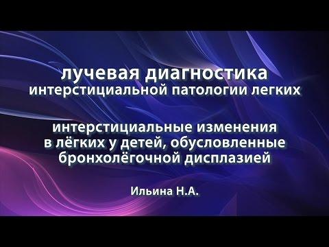 Ильина Н.А. – Интерстициальные изменения в лёгких детей, обусловленные бронхолёгочной дисплазией