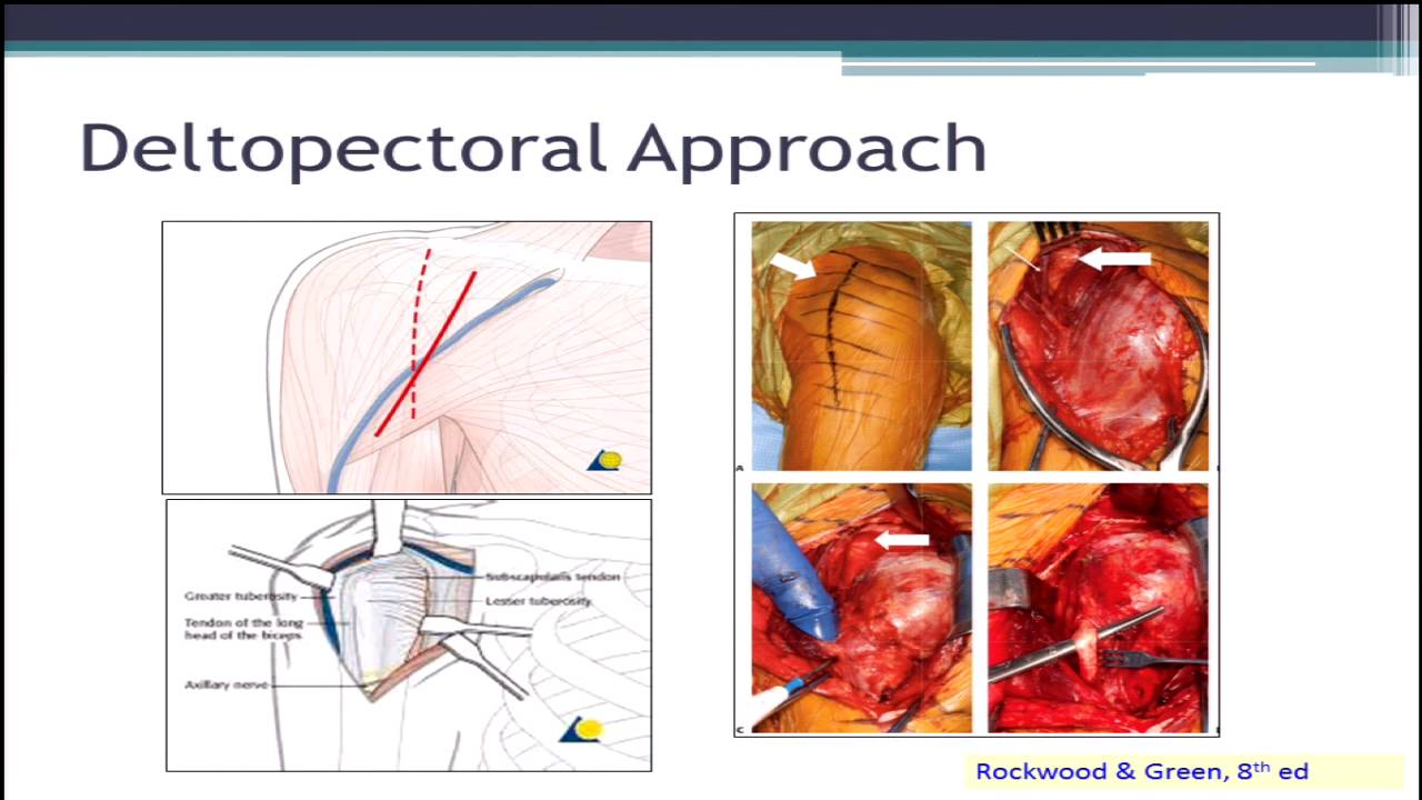 Choosing surgical approaches to proximal humerus fractures - YouTube