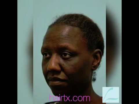 Eyebrow Hair Transplant Videos/Testimonials