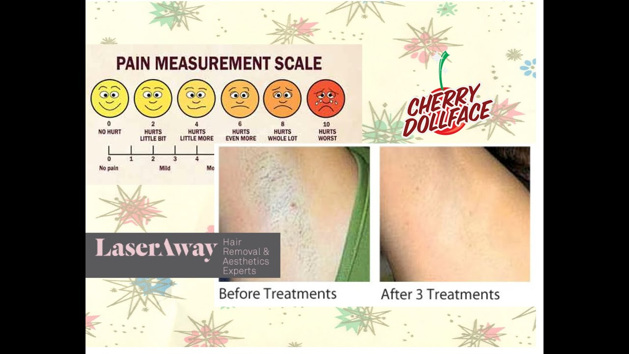 Laser hair removal vlog 3 how much does it really hurt by cherry laser hair removal vlog 3 how much does it really hurt by cherry dollface solutioingenieria Images