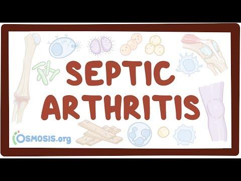 Septic Arthritis - Causes, Symptoms, Diagnosis, Treatment, Pathology