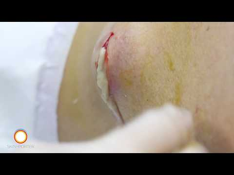 Infected sebaceous cyst removal