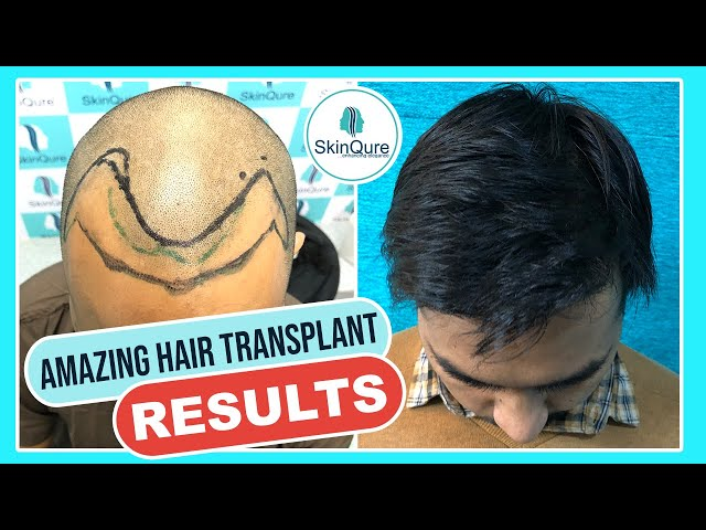 Hair Transplant Results After 8 Months | Hair Transplant Before & After Results | Dr Jangid
