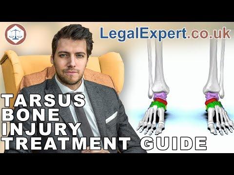 Tarsus Bone Injury Treatment Guide ( 2019 ) UK
