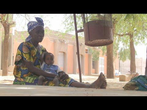 Au Niger, les enfants de plus en plus touchés par la malnutrition