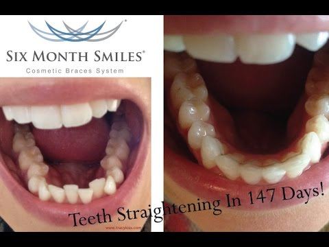 Six Month Smile Braces With Tracy Kiss Youtube