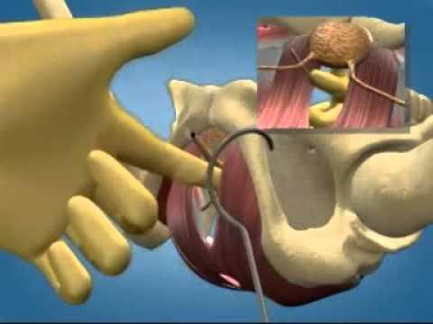 Mallas para resolver la incontinencia urinaria de esfuerzo