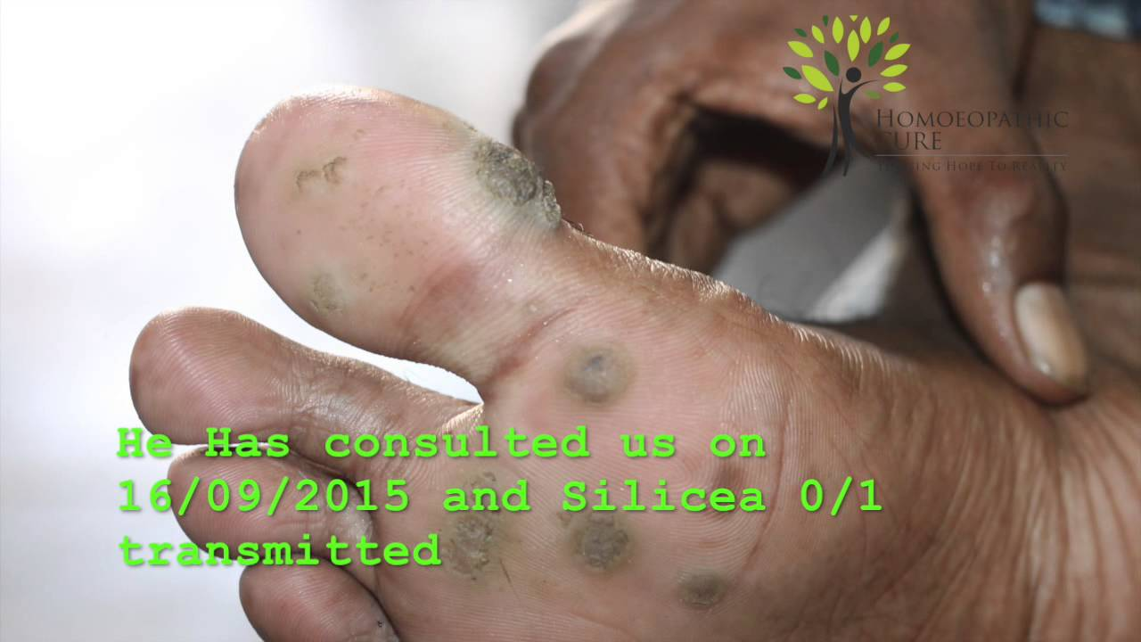 Planter Wart on feet since 4 years cured in a month by homeopathy