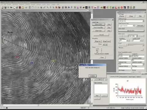 Otolith And Scale Analysis - Image-Pro Plus Software
