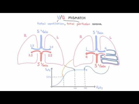 V-Q mismatch