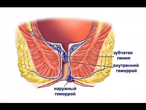 Внутренний геморрой лечение симптомы  Диагностика, профилактика и лекарство от геморроя