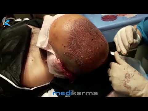 Istanbul Hair Transplant _karma_ Medical_Beauty (1)