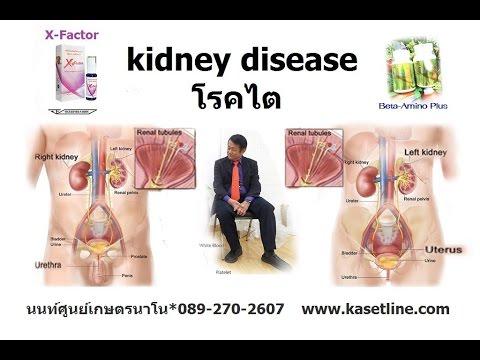 โรคไต (human kidneys) การรักษา ดูแล ลักษณะอาการ