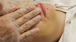 Медицинская чистка и желтый пилинг Лечение восстановление кожи при угрях прыщах