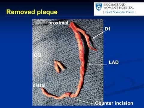 Coronary Endarterectomy of the Left Anterior Descending Artery