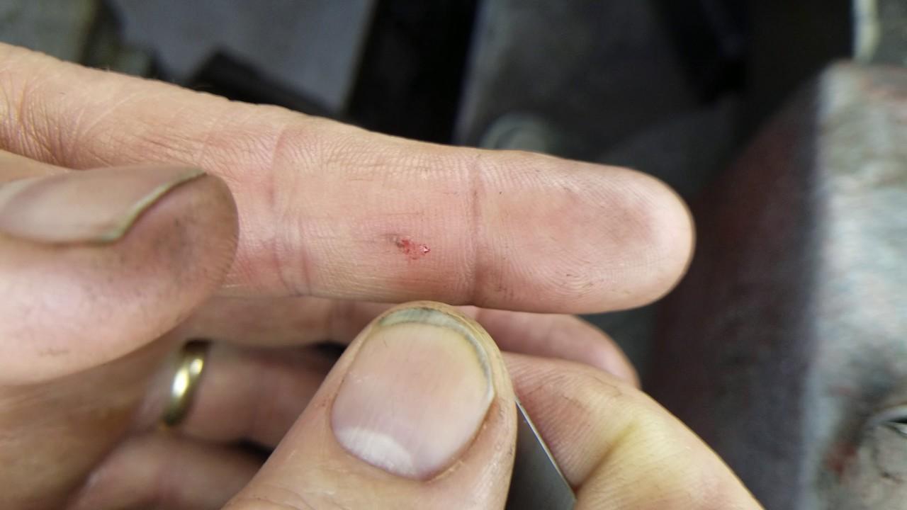 Removing metal splinter