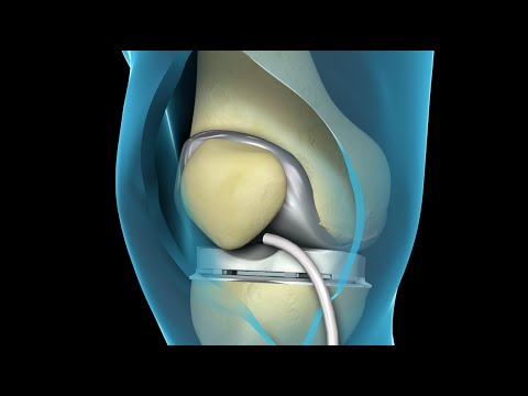 Knee Replacement (2009)