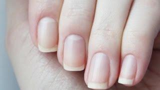 видео Как отбелить ногти в домашних условиях: лучшие средства для отбеливания ногтей