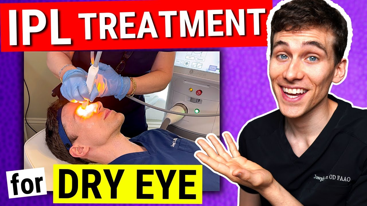 Lumenis IPL Dry Eye Treatment: Doctor Becomes the Patient!