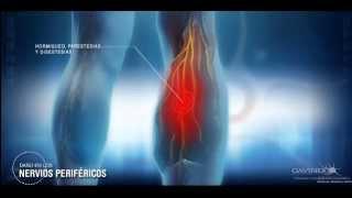 Diabetica imagenes de neuropatia