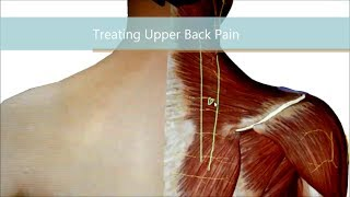 Upper Back Pain... Better, Faster!