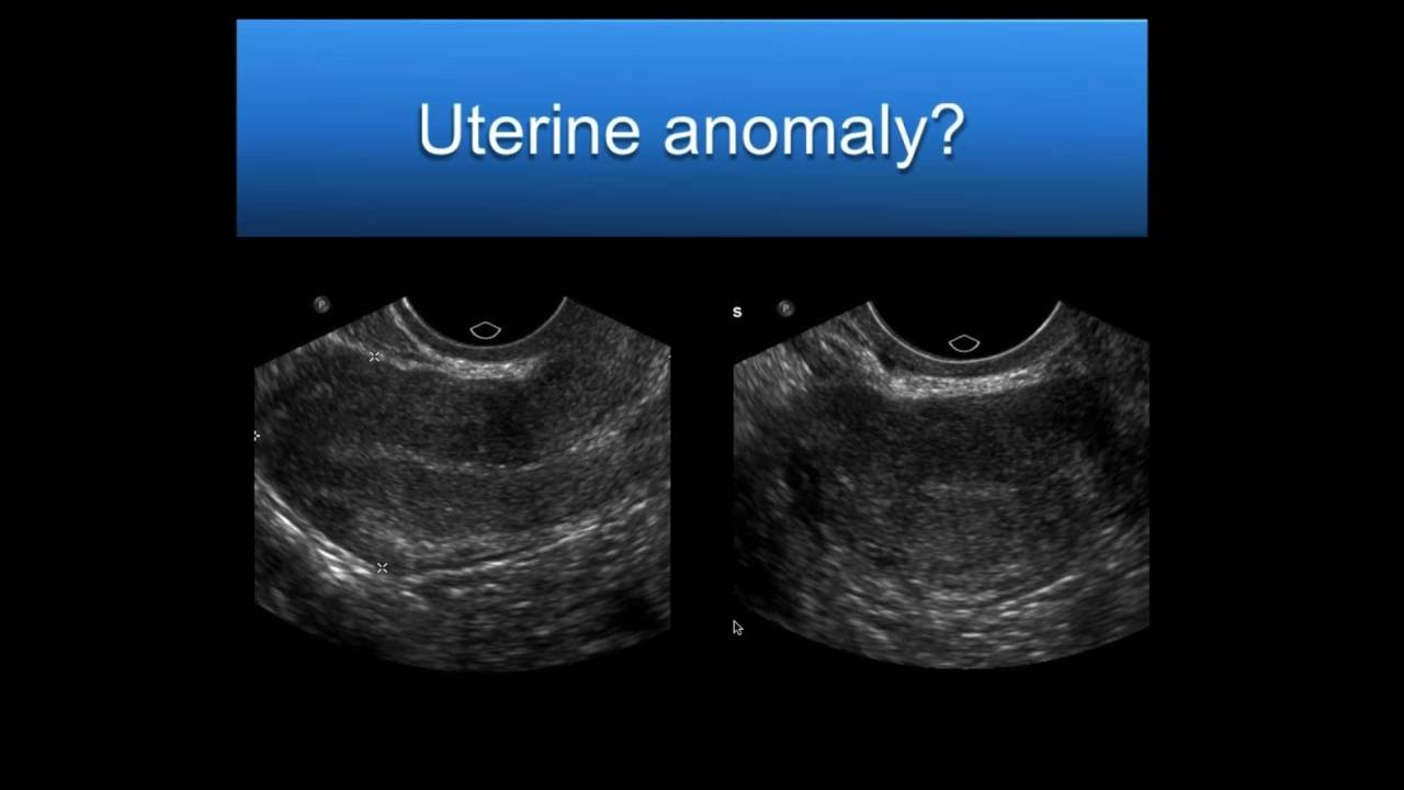 Aium Webinar  Problem Solving With 3d Sonography Of The