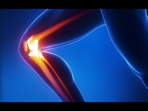 I tore my ACL and MCL in my Knee!  Will need Surgery