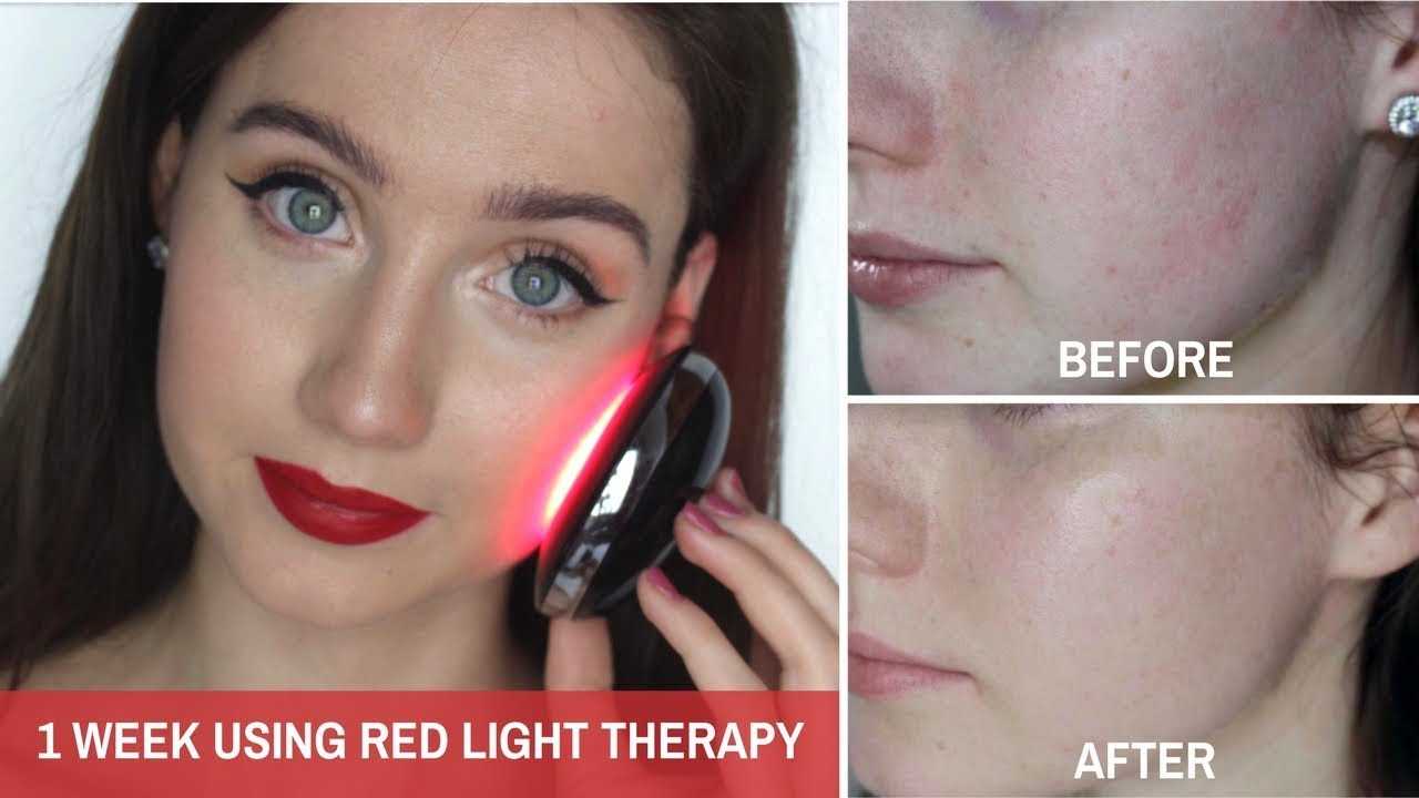 RED LIGHT THERAPY FOR ACNE? - Love my Skin Clear SKIN Compact | Alison McFarland
