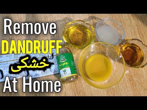 Hair Dandruff Treatment, Magical Home Remedy To Remove Dandruff, Get Rid Of Dandruff Urdu Hindi