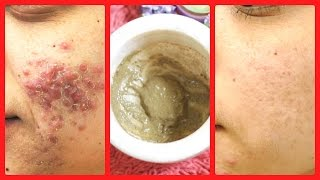 How To Remove Pimples Overnight/ acne treatment at home/ 100%effective/INDIANGIRLCHANNEL TRISHA