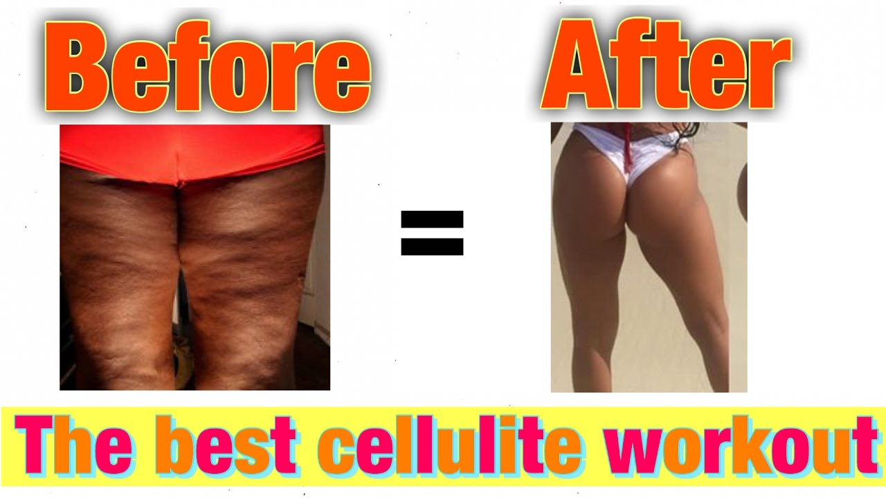 How To Lose Thigh Leg Fat Get Rid Of Cellulite Fast Workouts